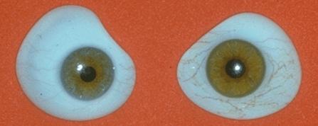 装假眼之后的图片_佩戴临时义眼片,请问眼片定制一般半年后还是三个月后